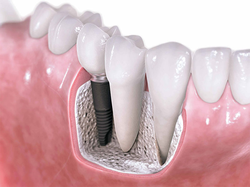 Bayat dental and Implantology Center - Tooth implant